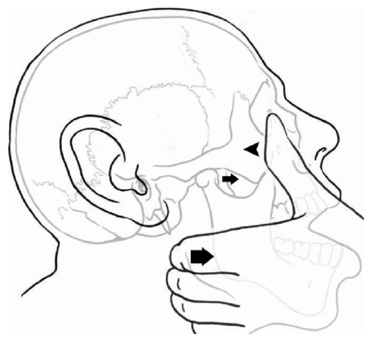 RCP - Save your Thumbs: Extra-oral reduction of anterior ...