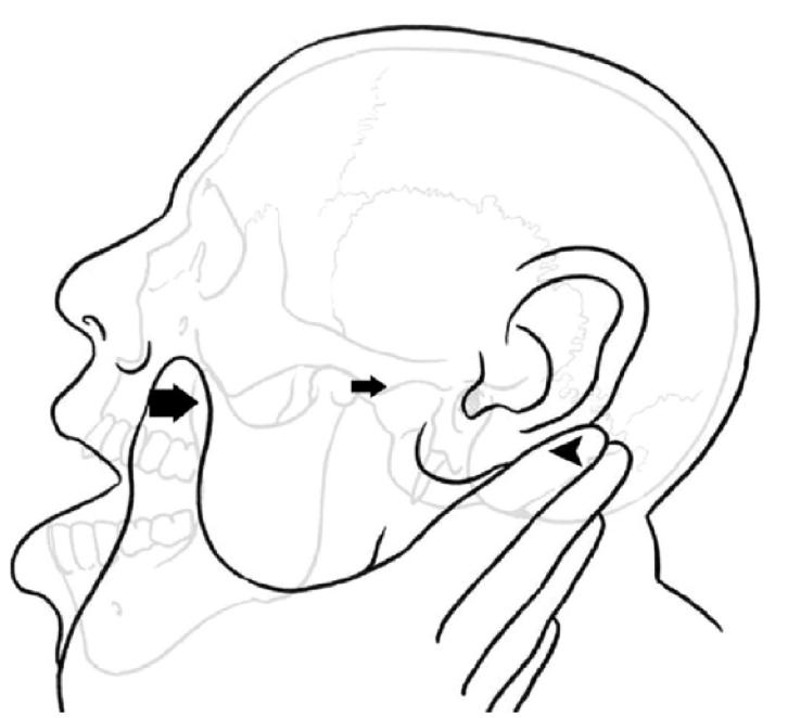 RCP - Save your Thumbs: Extra-oral reduction of anterior mandibular ...