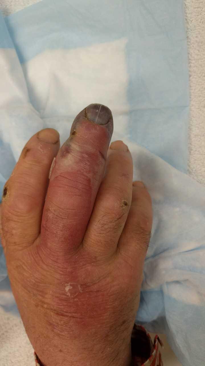 Posibile cauze de durere la articula?iile mainilor