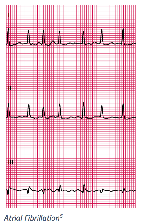 6. Premature Ventricular Contractions